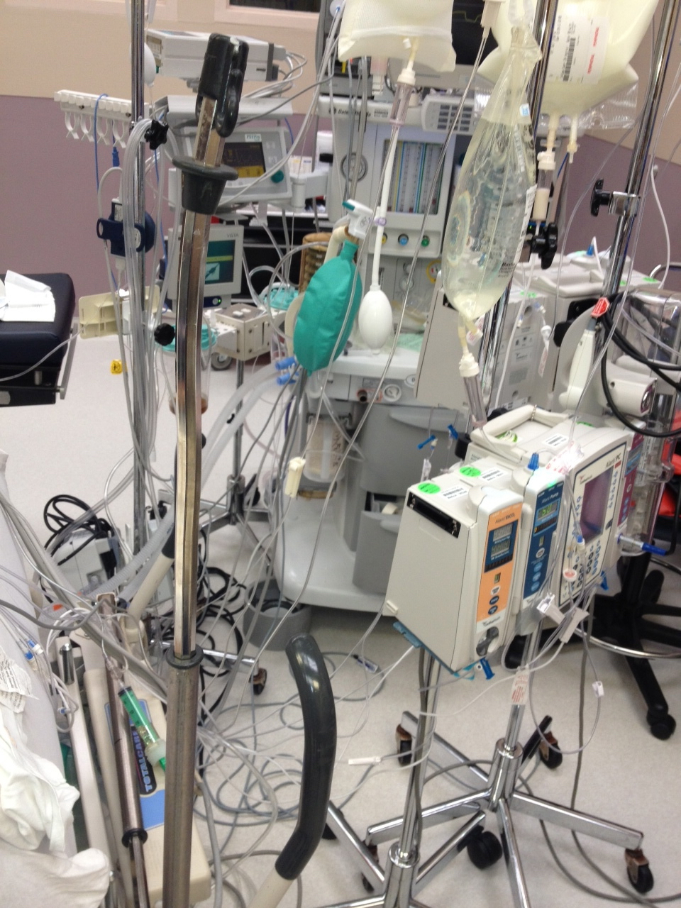 Multiple IV lines in the operating room, anesthesia, critical care, ASA IV patient, nurse anesthetist, CRNA