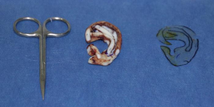 Surgeon creating an external ear